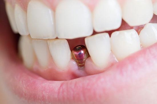 ایمپلنت دندان های قدامی و مسائل کشیدن زود رس دندان ها