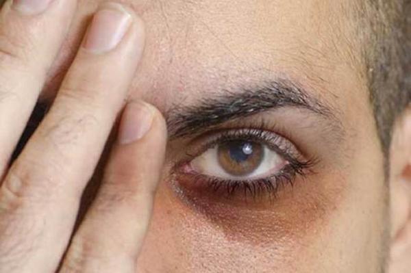 حلقه های تیره پای چشم به چه دلایلی ایجاد می گردد؟